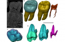 Deep look into teeth with neutrons